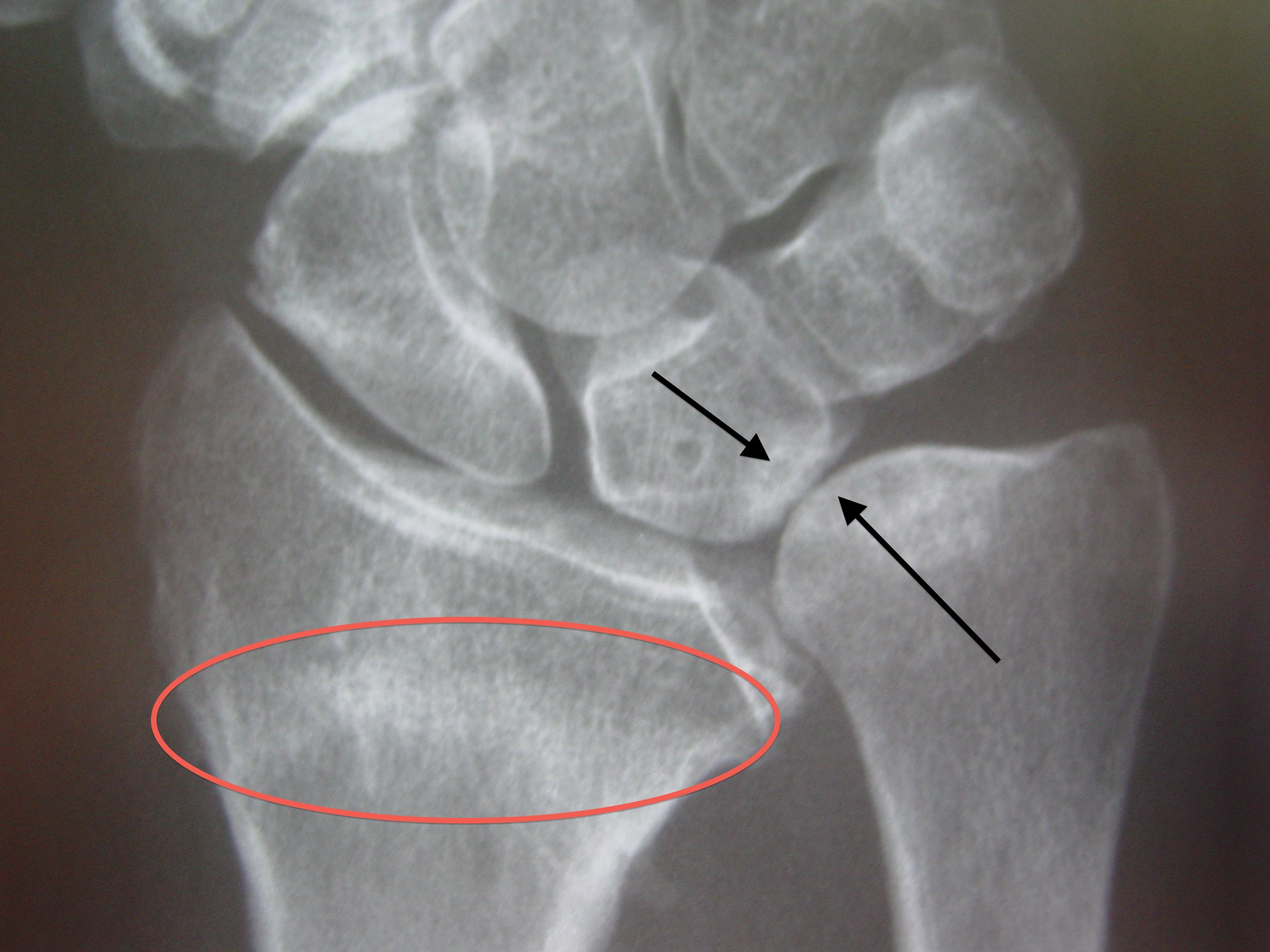 impacted fracture x ray -#main